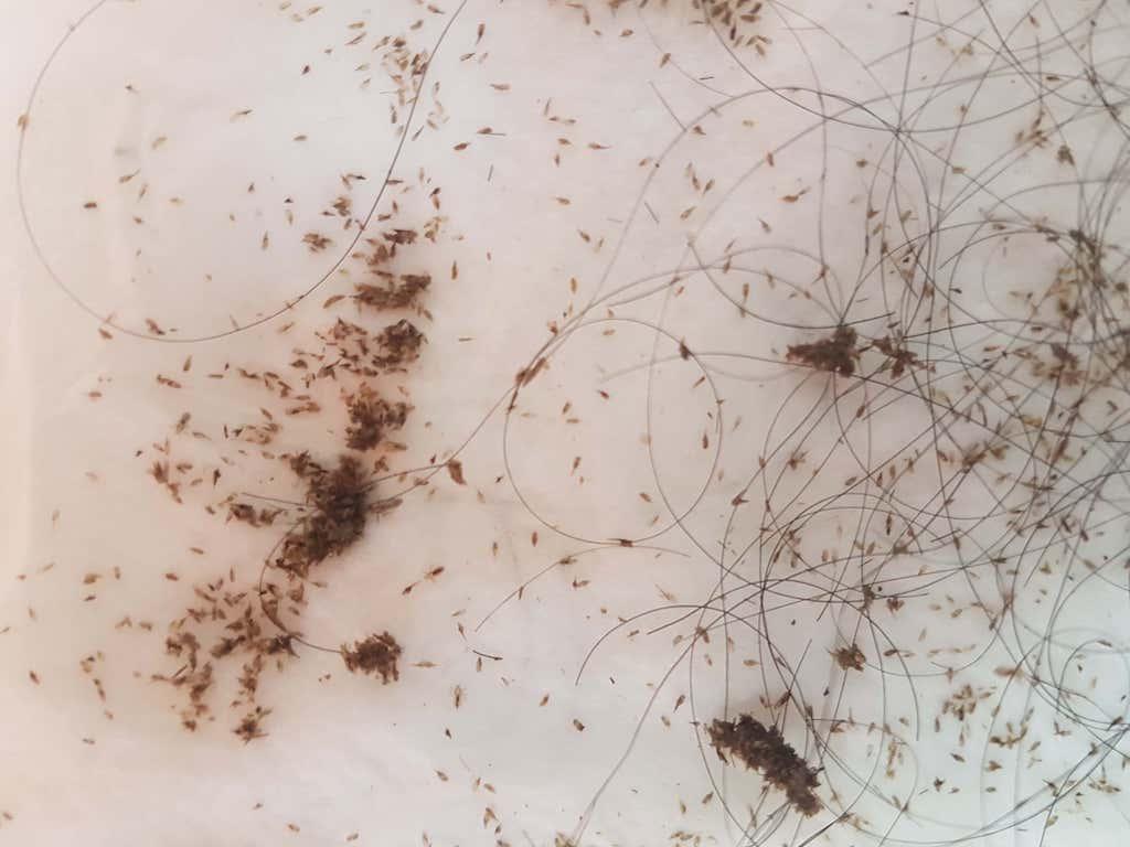 infestación grave de piojos